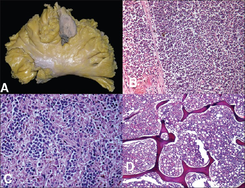 Figure 10: A. Gross photograph of the mesentery showing a mass; B. Microphotograph showing similar neoplastic cells. C. Infiltration of splenic red pulp with abnormal cells; D. Normocellular bone marrow free of infiltration